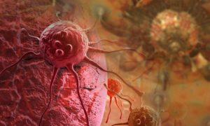 Καρκίνος στην χολή: Τα απλά συμπτώματα