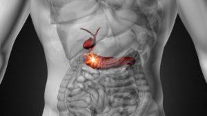 Καρκίνος στο πάγκρεας: Τα «ύπουλα» συμπτώματα
