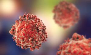 Τροφές που ευνοούν την εξάπλωση του καρκίνου