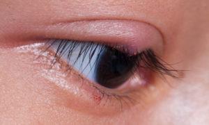 Kριθαράκι στο μάτι: Αντιμετώπιση